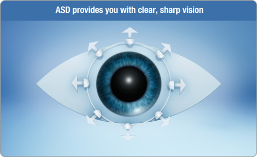 Clear, stable vision for astigmats thanks to Accelerated Stabilisation Design™ (ASD).